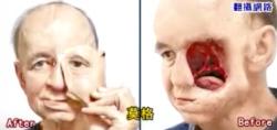 Gesichts-Prothese aus dem 3D-Drucker