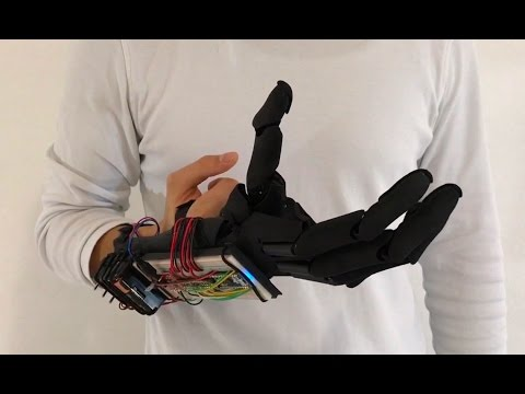 Youbionic Hand Commercial