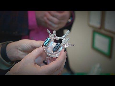 Wirbelsäulenbehandlung der Zukunft: Implantate aus dem 3D-Drucker