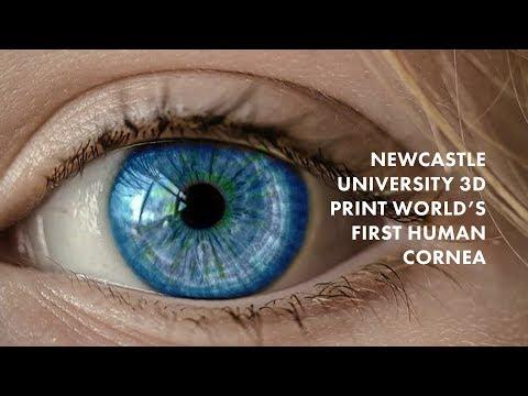Newcastle University 3D Print World's First Human Corneas