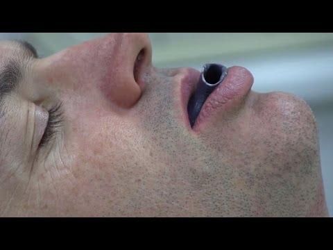 3D printing to treat sleep apnoea