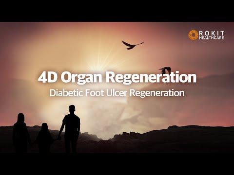 Diabetic Foot Ulcer Regeneration