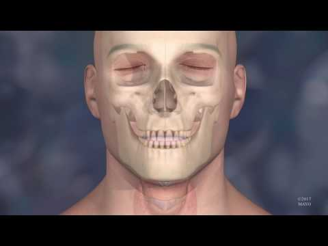 Animation of Face Transplant at the Mayo Clinic