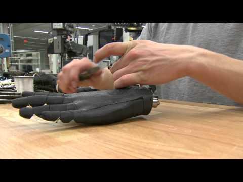 Printable Prosthetic Hand
