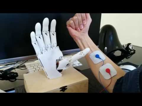 Youbionic Hand II Prototype moves with the complete code