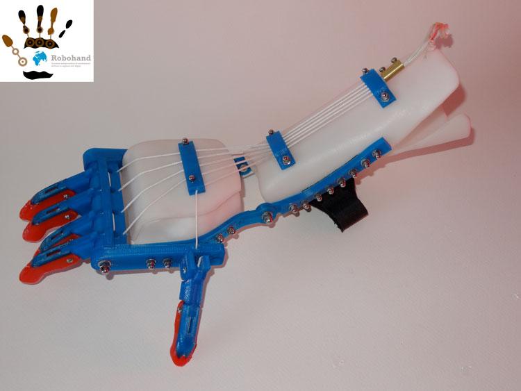 bersicht von handprothesen projekte aus dem 3d drucker. Black Bedroom Furniture Sets. Home Design Ideas