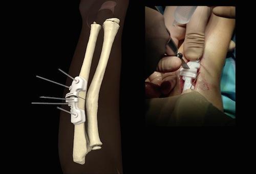 Komplizierter Knochenbruch erstmals mit Hilfe der 3D-Druck ...