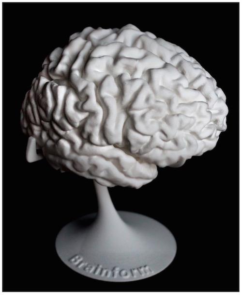 brainform_3d_druck_gehirn_3d_printing_brain