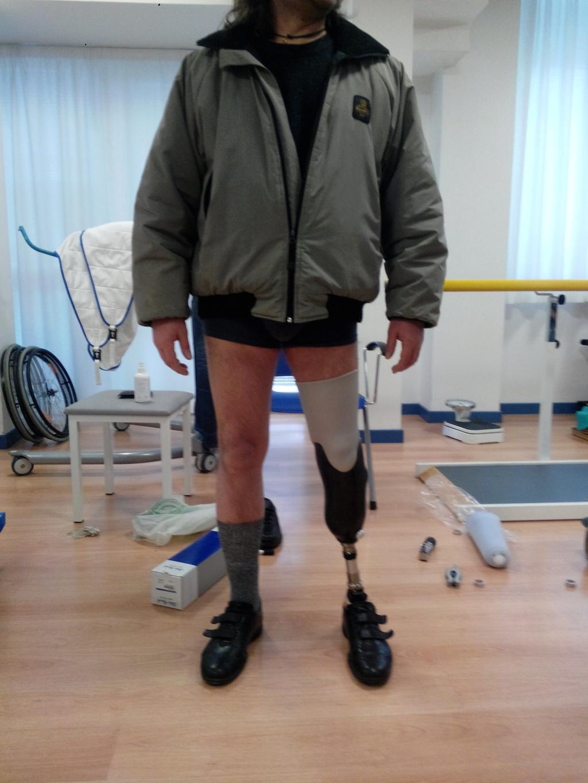 beinprothese3 3d druck wasp 3d printer leg prothesis - Biomedizin-Techniker stellt Beinprothesen am DeltaWASP 3D-Drucker her