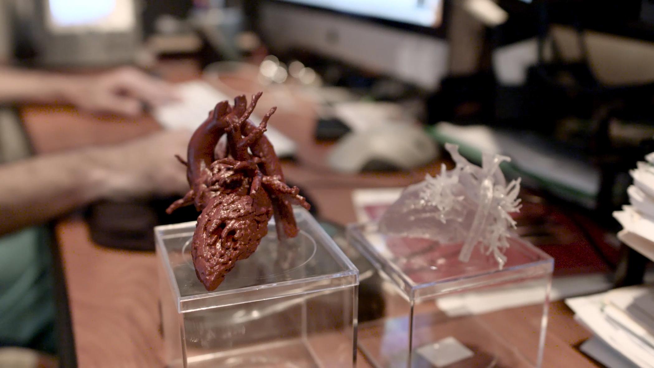 3d_printing_heart_surgery1_stratasys_mia_gonzalez