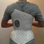 Cheneau6 150x150 - WASPmedical stellt Korsett für Skoliose-Patienten am 3D-Drucker her
