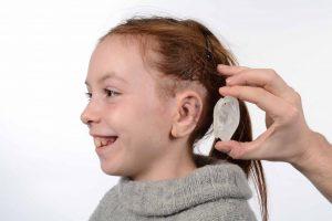 09 Ellies 3D gedrucktes Ohr 300x200 - 3D-Scanner in der Medizin: Segen für Mensch und Tier