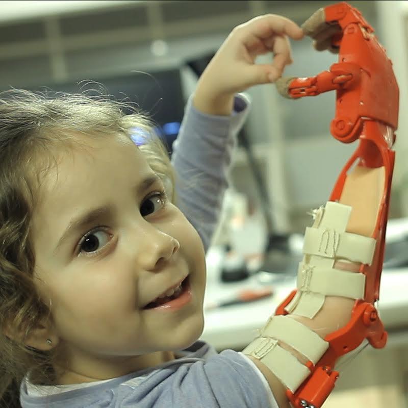 robotel tuerkiye3 3d gedruckte handprothese - e-NABLE Türkei: Robotel Projekt mit über 240 Freiwilligen druckt Handprothesen