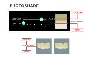 process photoshade 300x201 - DFAB 3D-Drucker kann Zahnersatz in 20 Minuten drucken