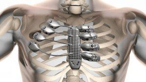 3D gedrucktes Implantat