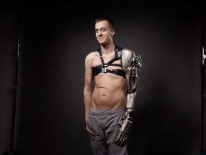 """Armprothese 3D Druck 3DDruck Metal Gear solid 300x225 - """"Druck mir einen neuen Fuß in 48 Stunden"""" 3D-Druck in der Medizin #1: Prothesen"""