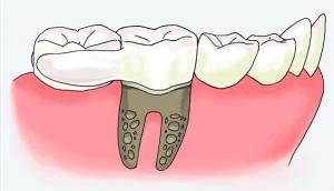 """REPLICATE Tooth Natural Dental Implants 2 300x172 - """"Ein strahlendes Lächeln aus dem 3D-Drucker"""" 3D-Druck in der Medizin #2: Dentalmedizin"""