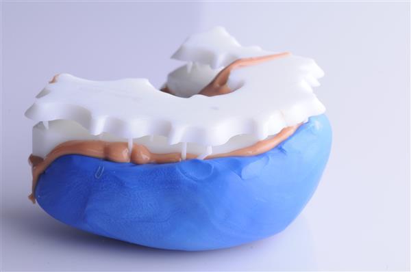 """Digital Smile Design3 - """"Digital Smile Design""""-Software hilft anhand von 3D-Scanning & 3D-Druck bei Zahnkorrekturen"""
