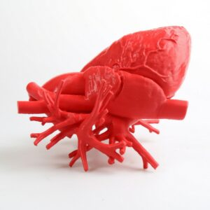 3D Druck - Menschenherz
