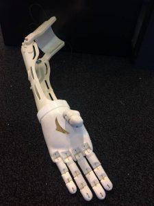 Ultimaker Prothesen Afrika 2 225x300 - Holländischer Arzt möchte nach Afrika fahren und 3D-gedruckte Prothesen herstellen