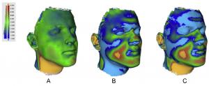 03 Farbige Kanten zur Anzeige von Abweichungen sehr groß 300x123 - Türkische Medizinexperten nutzen Eva, um Verschiebungen im Gesichtsweichgewebe zu messen