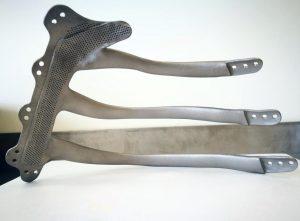 3d gedrucktes titanimplantat 300x221 - 3D-gedruckte Brustkorb-Prothese erfolgreich implantiert