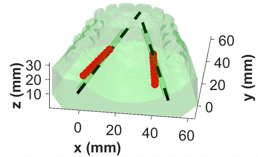 3d gedruckte mundreplik starfish LCC 2 1024x625 - 3D-gedruckte Mundreplik im Test für neue Oralchirurgie-Technik