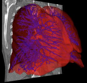 aether ai software segmentierte lunge 3d druck organe 300x288 - Aether kündigt AI Software zum 3D-Druck von Organen an