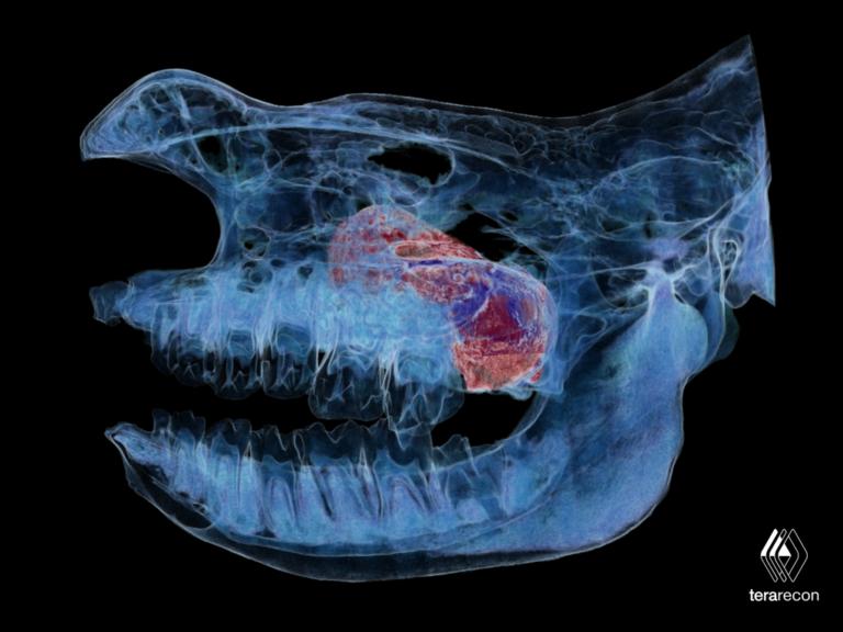 3D Technologien retten Nashorn Dame Layla das Leben - 3D-Technologien & BodyTom CT-Scanner retten Nashorn-Dame Layla das Leben