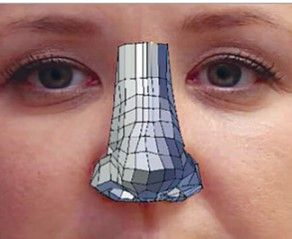 3D Gedruckte Nasen Prothese - 3D-gedruckte Nasenprothesen