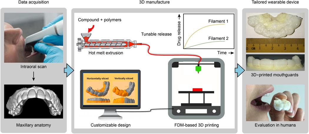 3d druck zahnschiene medikamente - ETH Zürich entwickelt 3D-gedruckte Zahnschiene zur Arzneimittelgabe