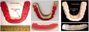 3d druck zahnschiene medikamente1 300x108 - ETH Zürich entwickelt 3D-gedruckte Zahnschiene zur Arzneimittelgabe