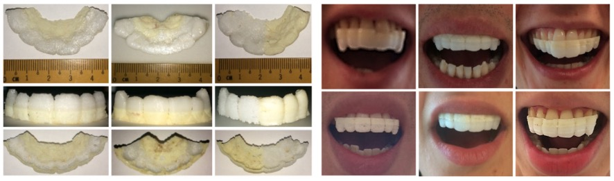 3d druck zahnschiene medikamente2 - ETH Zürich entwickelt 3D-gedruckte Zahnschiene zur Arzneimittelgabe