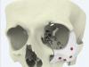 Xilloc erweitert sein orthopädisches Portfolio mit OTN