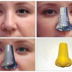 Nasenprothese 3Dgedruckt 150x150 - 3D-gedruckte Nasenprothesen