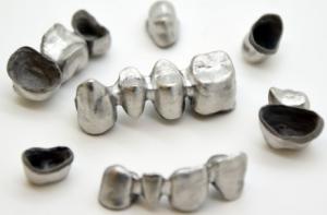 Zahnimplantate 300x197 - Yndetech verspricht dentale Implantate in nur 24 Stunden