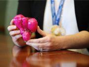 3D-Drucklabor hilft bei der Entfernung von 50 Tumoren bei Patientin