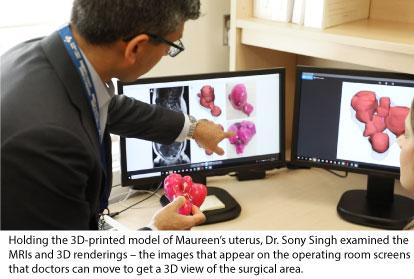 3D Drucklabor hilft bei der Entfernung von 50 Myomen bei Patientin2 - 3D-Drucklabor hilft bei der Entfernung von 50 Tumoren bei Patientin