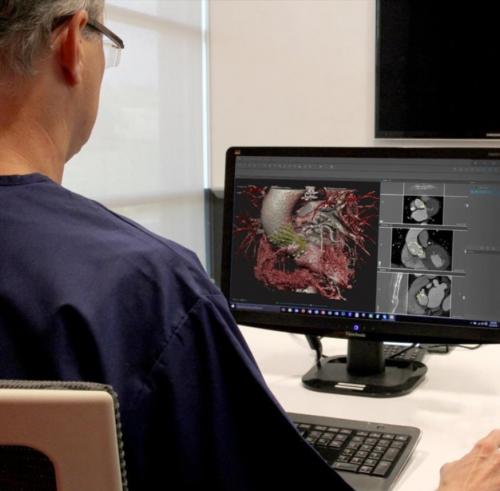 D2P e1529405245164 - 3D Systems bietet neuen On-Demand-Service für 3D gedruckte anatomische Modelle an