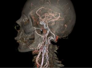 Model 3d scan menschlicher kopf mit GEHealth Software 300x221 - Vereinfachter 3D-Druck von medizinischen Modellen durch neue GE Healthcare Software