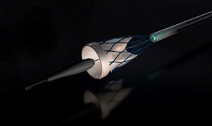 Admedus 3D gedruckte Aorten Herzklappe erstmals erfolgreich implantiert 300x178 - Admedus' 3D-gedruckte Aorten-Herzklappe erstmals erfolgreich implantiert