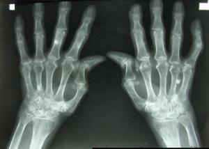 Arthritis Hand 300x214 - Mögliche Behandlung von Arthritis durch 3D gedruckten Knorpel