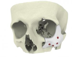 CT Bone 1 Front 300x236 - 3D-gedruckte CT-Knochenimplantate