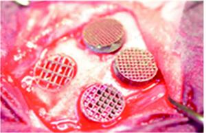 StudieSLM 3D Giterstrukturen aus Titan für Knochenregeneration3 300x193 - Studie: SLM-3D-Gitterstrukturen aus Titan für Knochenregeneration