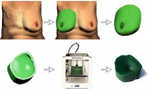 3D Modelle als intraoperative Leitlinien bei Brustrekonstruktionen2 300x183 - 3D-Modelle als intraoperative Leitlinien bei Brustrekonstruktionen