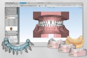 "SHINING 3D kooperiert mit AGE Solutions für Maestro 3D Ortho Studio Software 300x199 - SHINING 3D kooperiert mit AGE Solutions für ""Maestro 3D Ortho Studio""-Software"