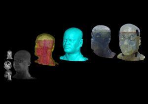 Phantom Kopf University of Pittsburgh 300x212 - 3D gedruckter Kopf hilft der University of Pittsburgh MRI-Scans zu verbessern