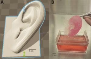 3d.fab Ohren 3D Druck Bioprinting 300x194 - Bio-3D-Druck direkt auf der Haut