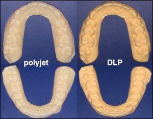 Dentalabdrücke polyjet DLP 300x234 - Wie genau sind 3D-gedruckte Dentalmodelle?