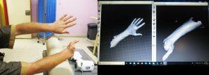 3D Modell gescannte Hand f%C3%BCr Prothese 300x108 - Ärzte ohne Grenzen: 3D-gedruckte Prothesen für Kriegsverletzte